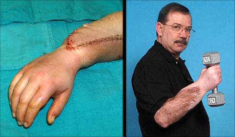 After 35 Years Of Amputation Hand Transplant Still Proves